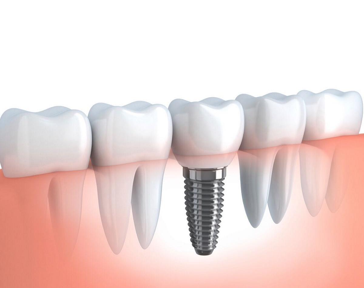 Dente mancante impianto