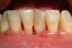 dente perso per parodontite