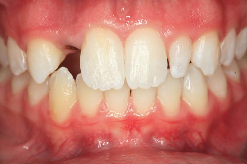 dente mancante, cosa fare?