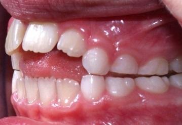 malocclusioni denti da latte