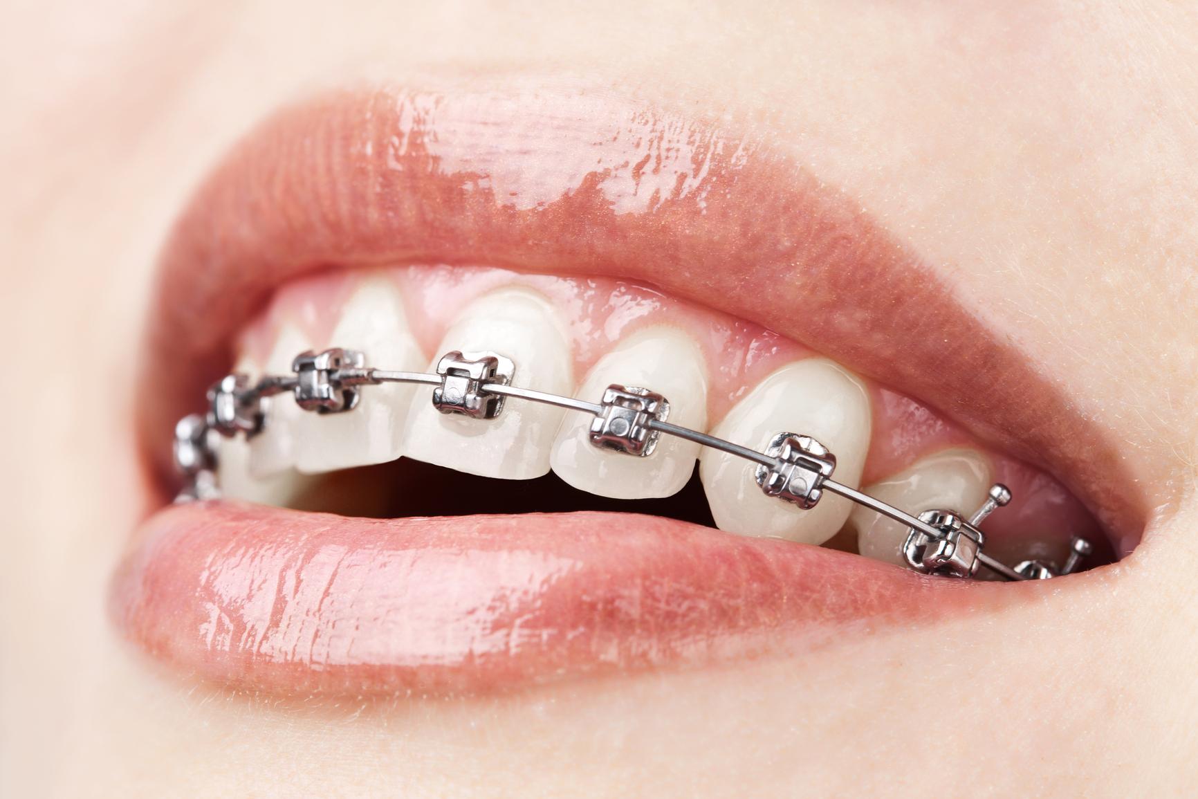 affollamenti dentari apparecchio