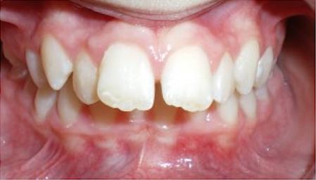 frattura dente sventagliato