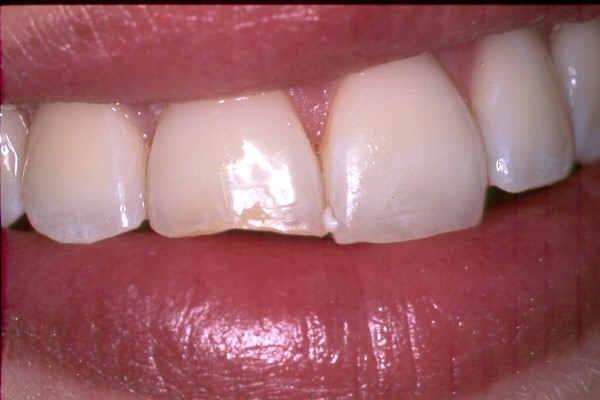 frattura dentale non complicata