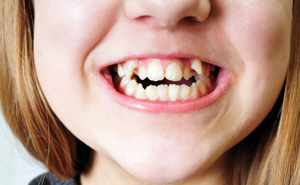denti storti bambini