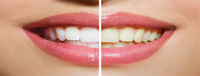 dentifrici sbiancanti