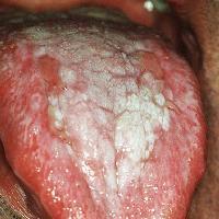 lichen planus lingua bianca