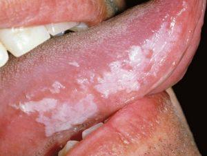 lingua bianca leucoplachia