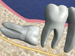 denti del giudizio inclusi