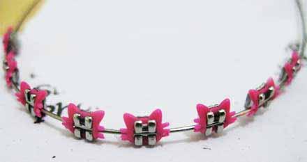 apparecchio denti colorato