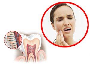 mal di denti sensibilità