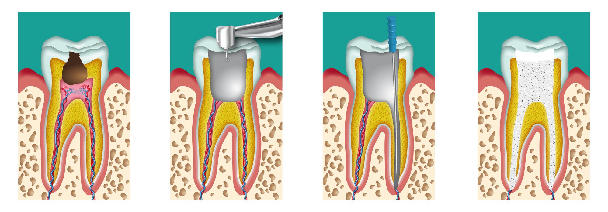 fasi devitalizzazione dente