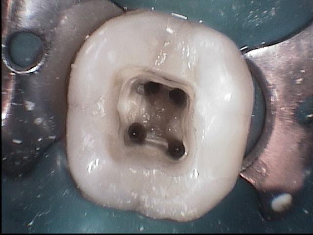 Canali del dente