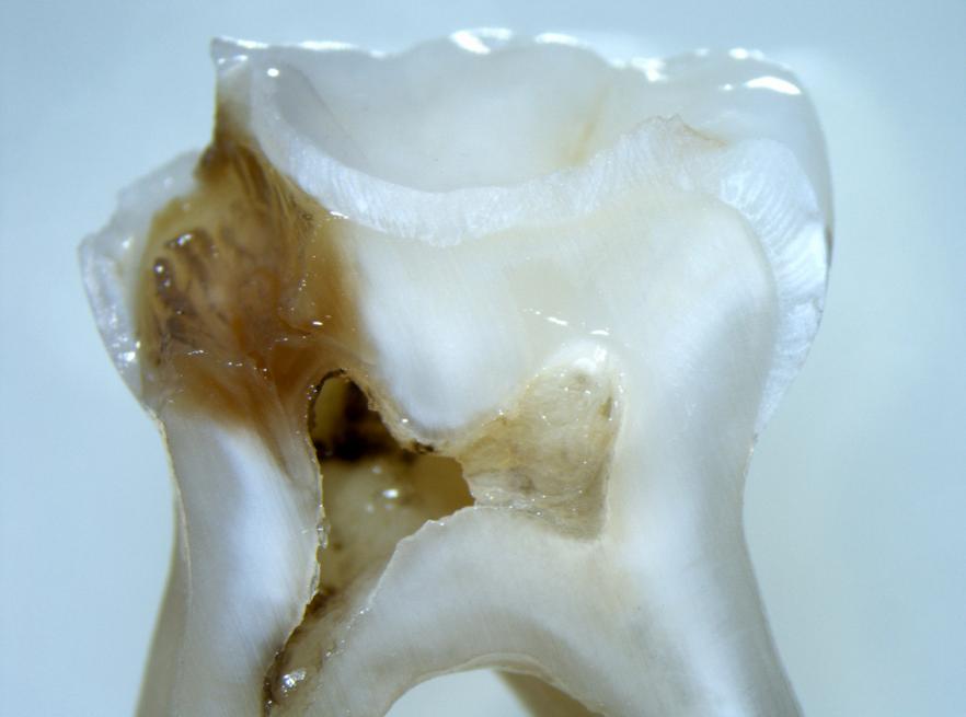 carie dentale profonda