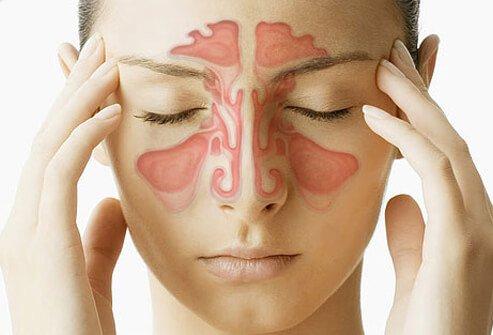 impianti e sinusite