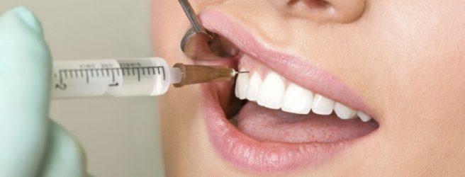 anestesia dal dentista