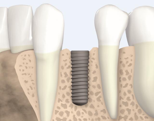 Osteointegrazione degli impianti