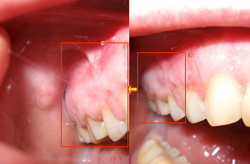 cisti dentaria