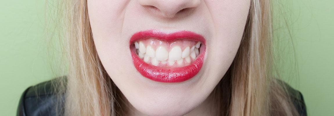 serramento dentale