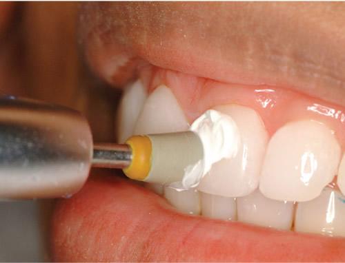 lucidatura dei denti