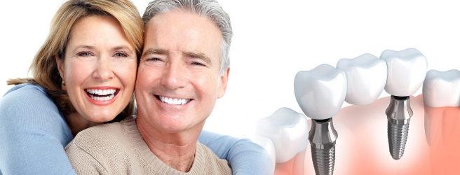 mettere un impianto dentale