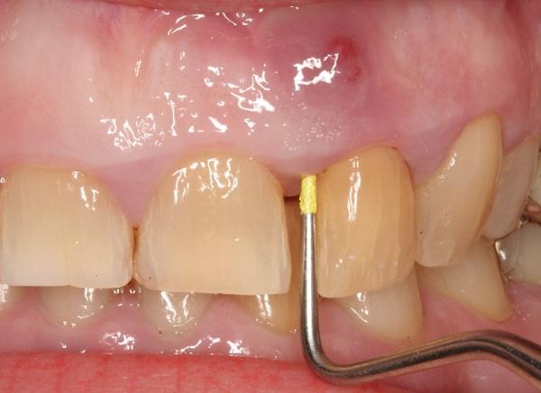 ascesso parodontale