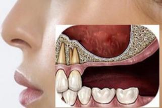 impianti dentali superiori