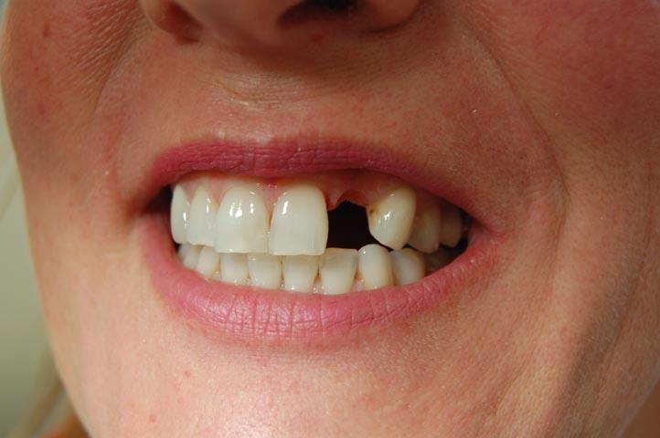 dente mancante