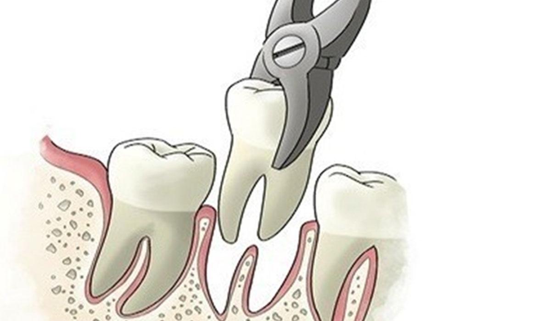 togliere un dente