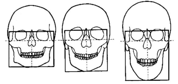 biotipo facciale