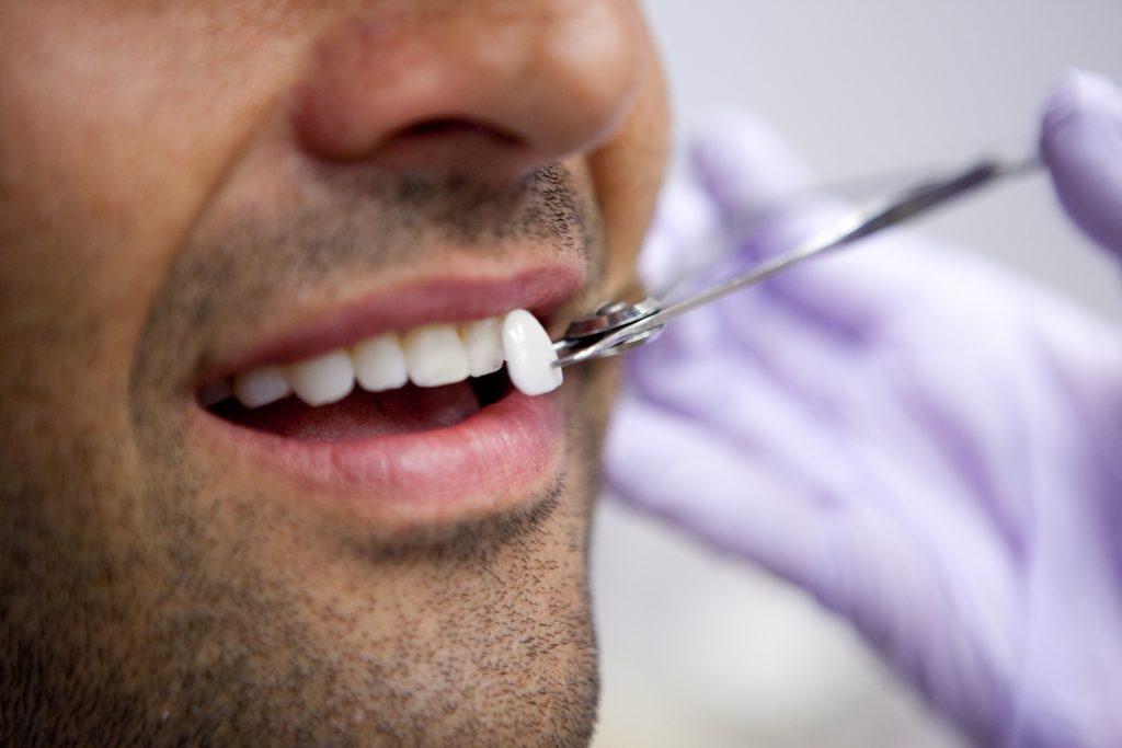 tipologie di faccette dentali