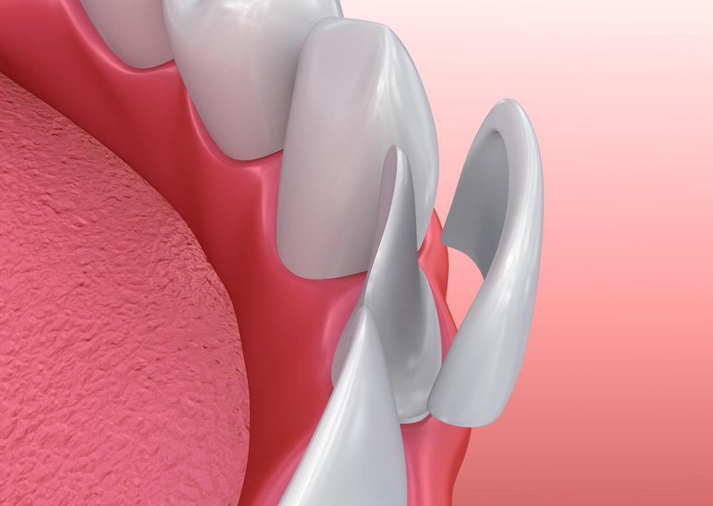 applicazione faccette ai denti