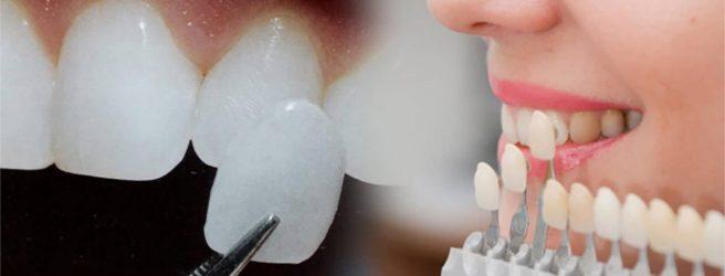 mettere le faccette dentali