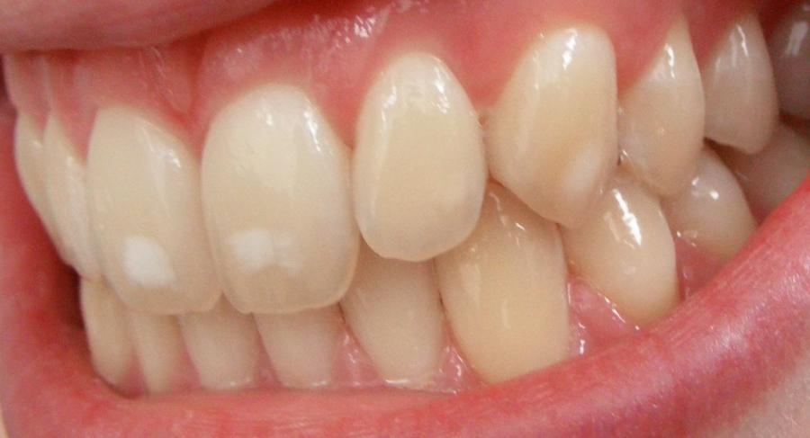celiachia e cavo orale