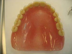 palato dentiera