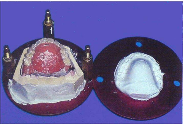 ribasatura dentiera