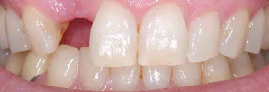 devitalizzare o estrarre il dente