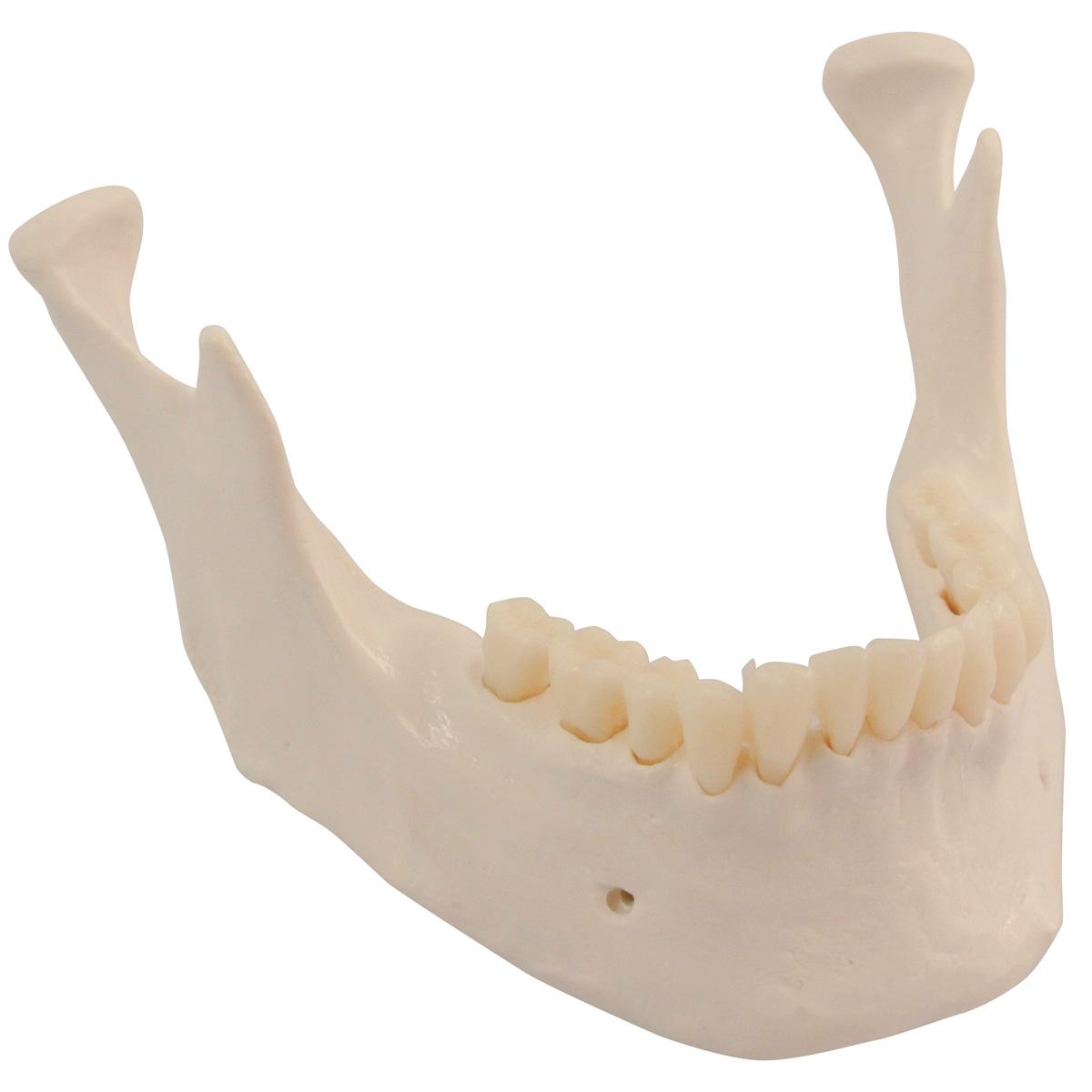 prelievo di osso dalla mandibola