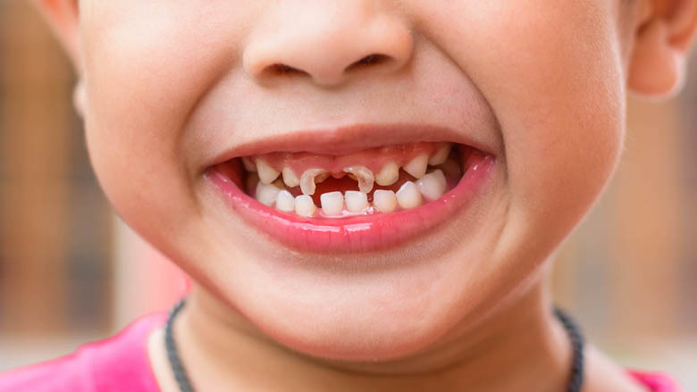 dente da latte cariato