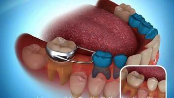 mantenitore di spazio dente