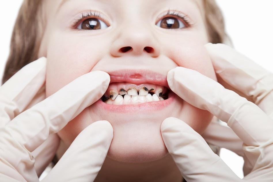 visita di odontoiatria pediatrica