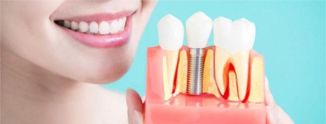 rischi in implantologia