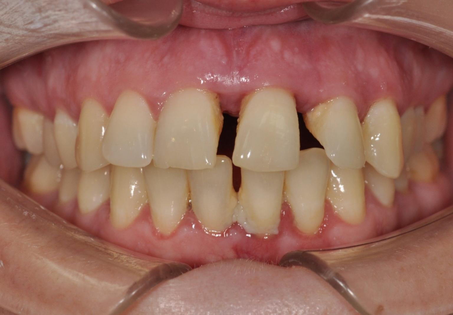 diastema e parodontite