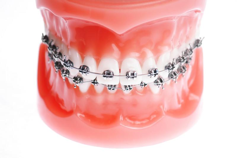 arco ortodontico