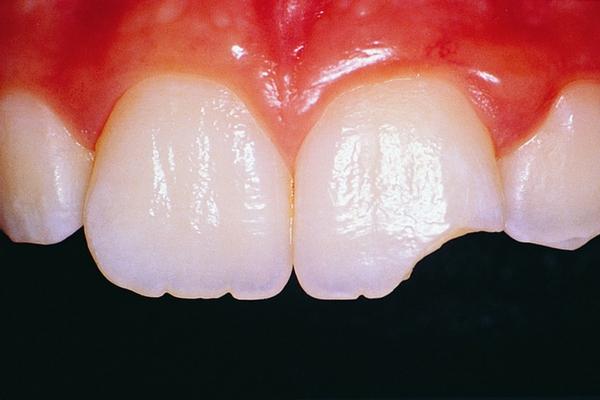 riparare un dente scheggiato