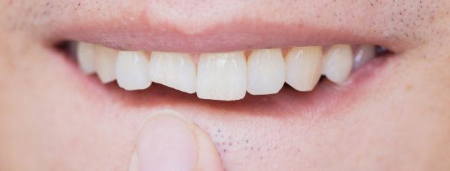 riparare dente fratturato