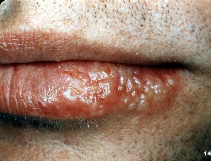 vescicole herpes