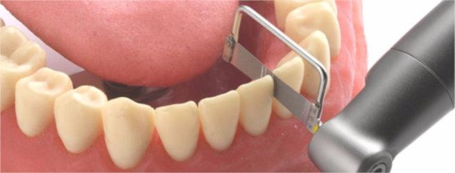 limatura dei denti