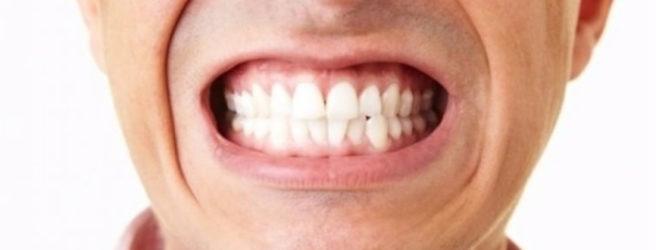 serramento dei denti