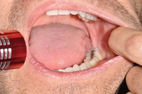 esame della bocca