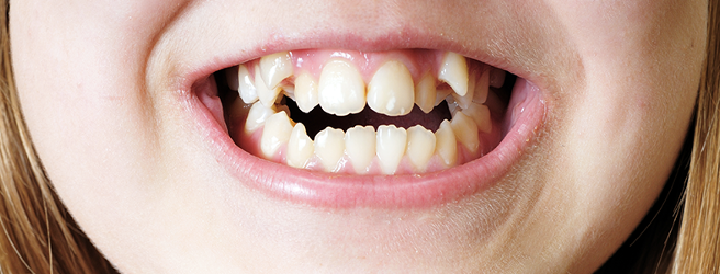 terapia denti storti